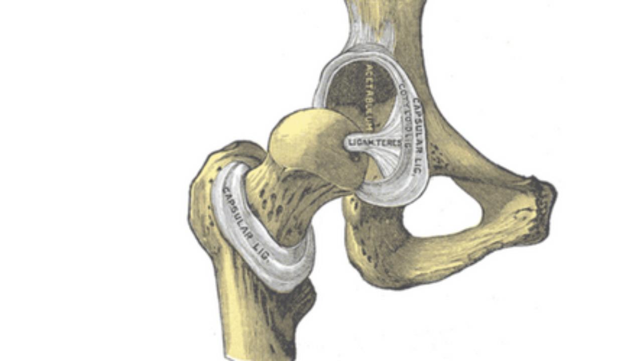 Protesi All Anca Difettosa Sai Come Riconoscerla Ortopedia Sanitaria