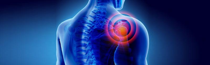 Cuffia dei rotatori lesionata: trattamento e riabilitazione